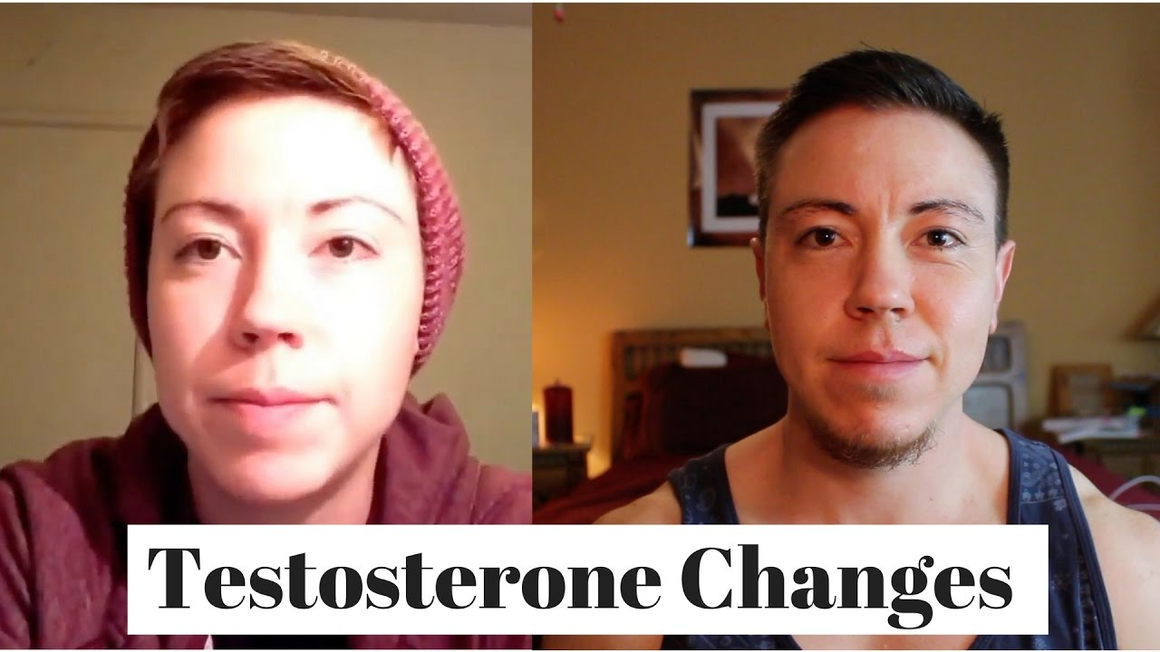 how much does ftm hormone therapy cost