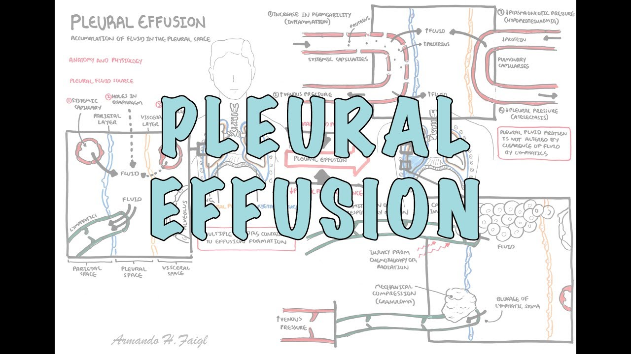 Pleural Effusion (DETAILED) - (pathophysiology, signs and symptoms ...