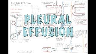 Pleural Effusion (DETAILED) - (pathophysiology, signs and symptoms, treatment)