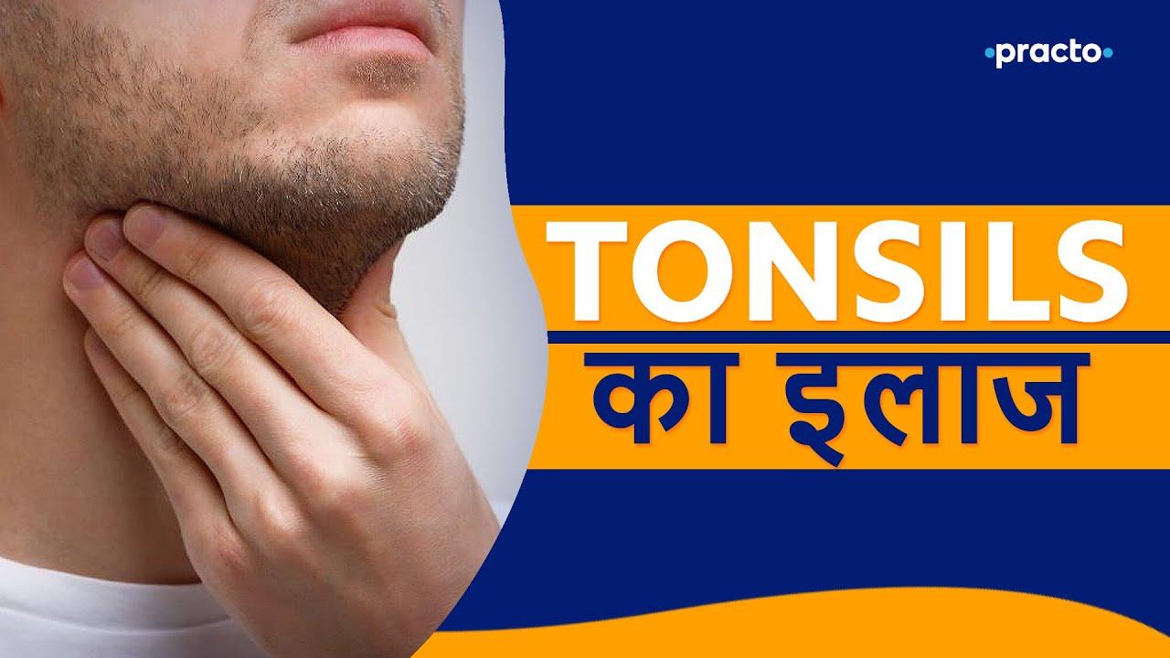 Download Tonsils ka Ilaj, Lakshan aur upay    टॉन्सिल्स    Practo