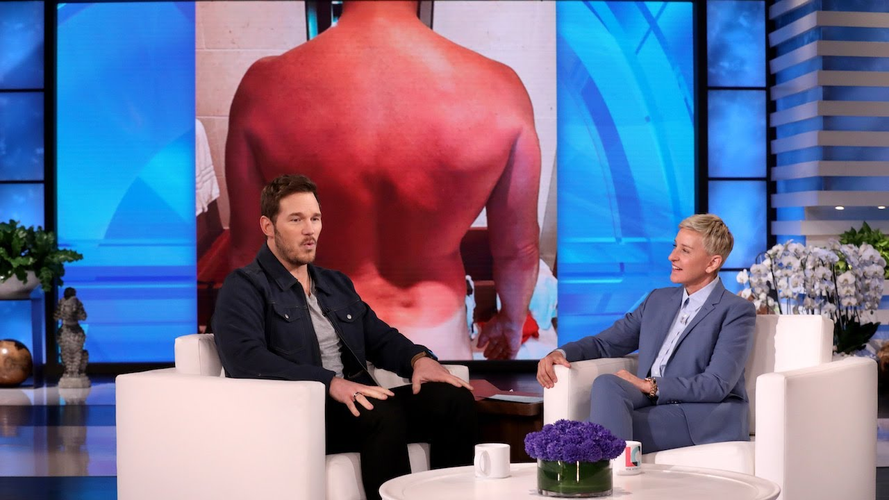 Chris Pratt tells Ellen how his nasty sunburn put a damper on his ...