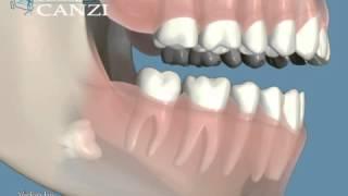 3¯ Molare con Corrosione Dente Adiac