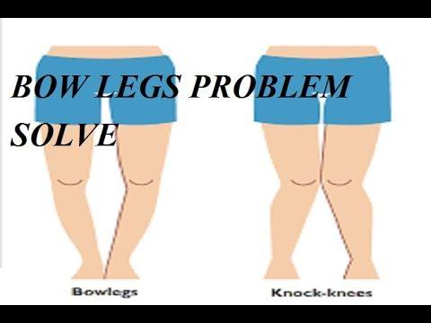 Bow Legs No More Pdf