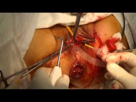 Phẫu thuật đặt mảnh ghép tổng hợp  điều trị sa tạng chậu