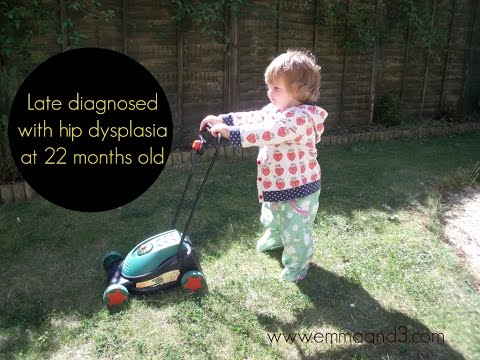 Walking pre operation for hip dysplasia correction. DDH diagnosis at age 22 months.