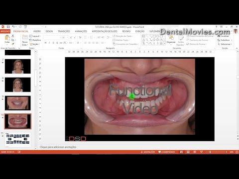 Digital Smile Design - Christian Coachman & Livio Yoshinaga - PART 1/4