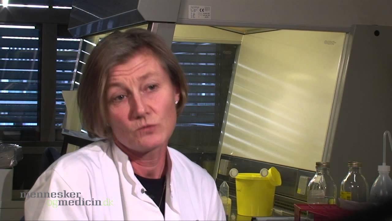 Forskning i lymfekræft i huden: At skelne mellem ondartet og godartet