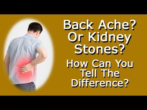 Back Ache Or Kidney Stone Pain How Can You Tell The Difference Youtube
