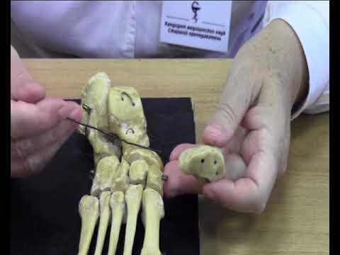 Клиновидная кость стопы болит