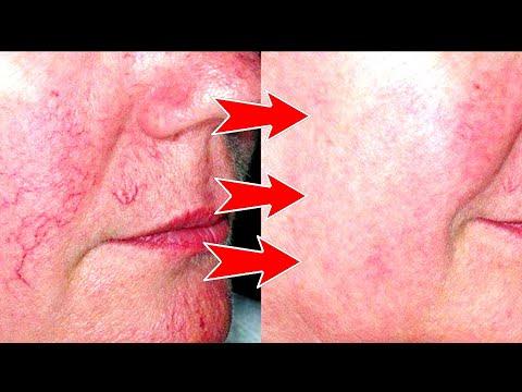 Уход за кожей при куперозе в домашних условиях