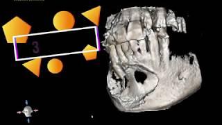 Mandibular Cyst