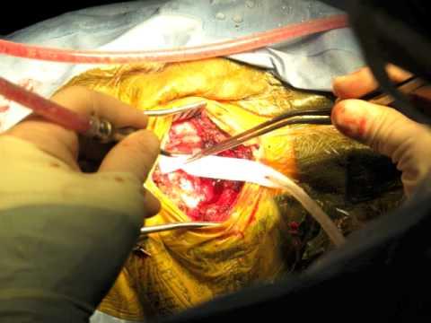 Retrosigmoid Craniectomy