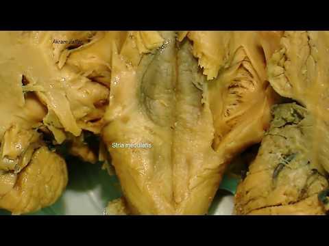 Medulla oblongata, external anatomy