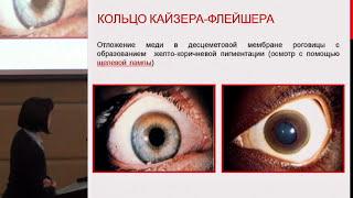 Никулина О.Ф., Опыт ведения пациента с болезнью  Коновалова-Вильсона, протекающей с гемолизом.