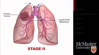 Lung Cancer: Staging Presentation