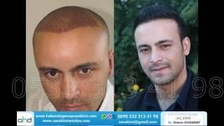 Saç Ekimi Öncesi ve Sonrası Görüntüler2 Dr.Hakan Doğanay