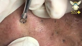 BLACKHEADS AND WHITEHEADS REMOVAL ON FACE 211114!
