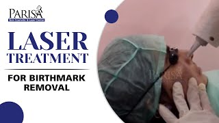 LASER TREATMENT FOR  BIRTH MARK by DR ASHIMA GOEL; Parisa Skin Cosmetic & Laser Centre Thumbnail
