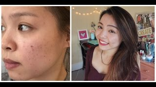 Review Sản Phẩm Trị Thâm Mụn Hiệu Quả - How to Get Rid Of Acne Scars | TrinhPham