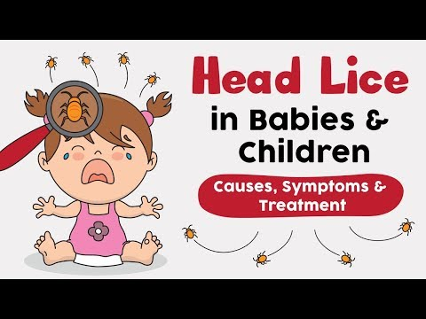 Head Lice in Babies and Children Causes, Signs and Remedies