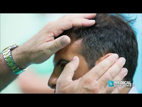 """Evento """"Rigenera Activa"""",  terapia innovativa per la caduta dei capelli"""