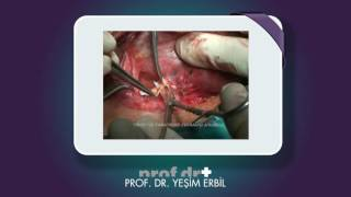 Tiroid ameliyatında sinirlerin bulunması