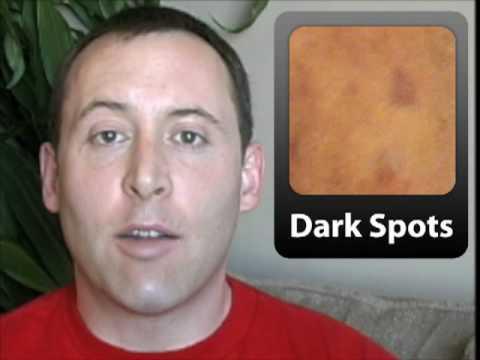 post inflammatory hyperpigmentation spots left behind after acne youtube. Black Bedroom Furniture Sets. Home Design Ideas
