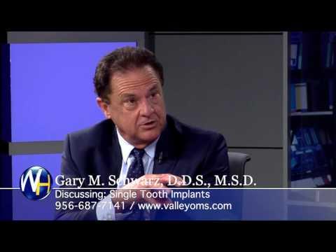 Single Tooth Implants with McAllen, TX Gary Schwarz, DDS
