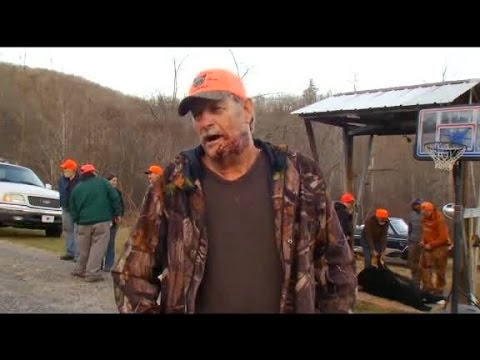 WARNING GRAPHIC: Mitchell County, NC bear misses hunter's jugular vein in attack