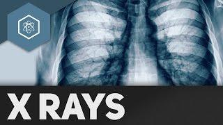 Röntgenstrahlen - Wie funktionieren X-Rays?