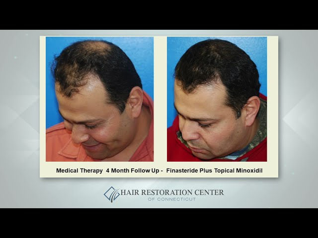 Medical Therapy Solutions For Hair Loss - Scott Boden, MD