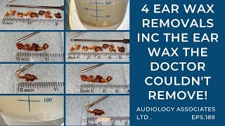 4 EAR WAX REMOVALS INC THE EAR WAX THE DOCTOR COULDNT REMOVE - EP 189