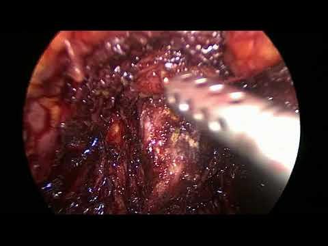 bundle vascolo nervoso prostata anatomia