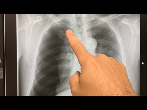 large collapsed lung - Xray interpretation - YouTube   480 x 360 jpeg 18kB