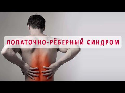 Признаки и лечение лопаточно-рёберного синдрома