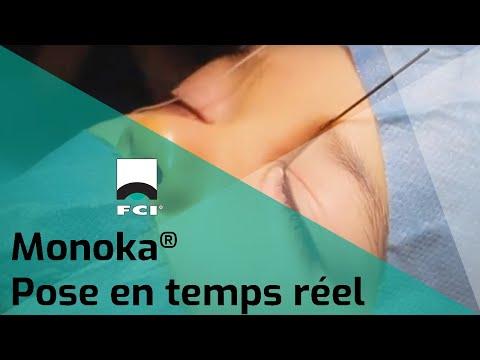 Vignette Vidéo | Pose d'une sonde Monoka®en temps réel