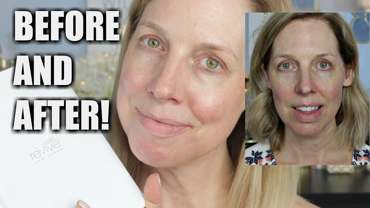 Before And After Revive Light Therapy Results Youtube