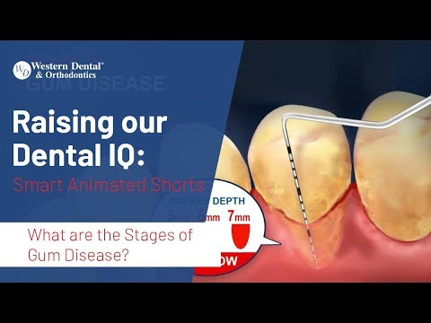 What are the Stages of Gum Disease? | Western Dental