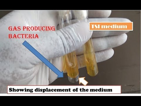 Gas producing bacteria  |The simplest way of  identification  | Fully practical Microbiology