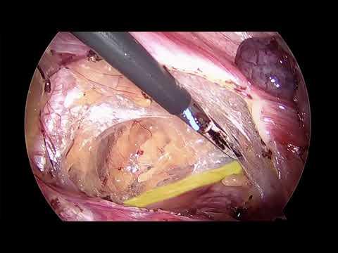 Keeping An Eye On The Enemy: Laparoscopic & Robotic Retroperitoneal Entry and Ureterolysis