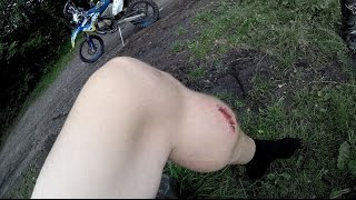 How i fucked up my leg - Dirtbike Fail
