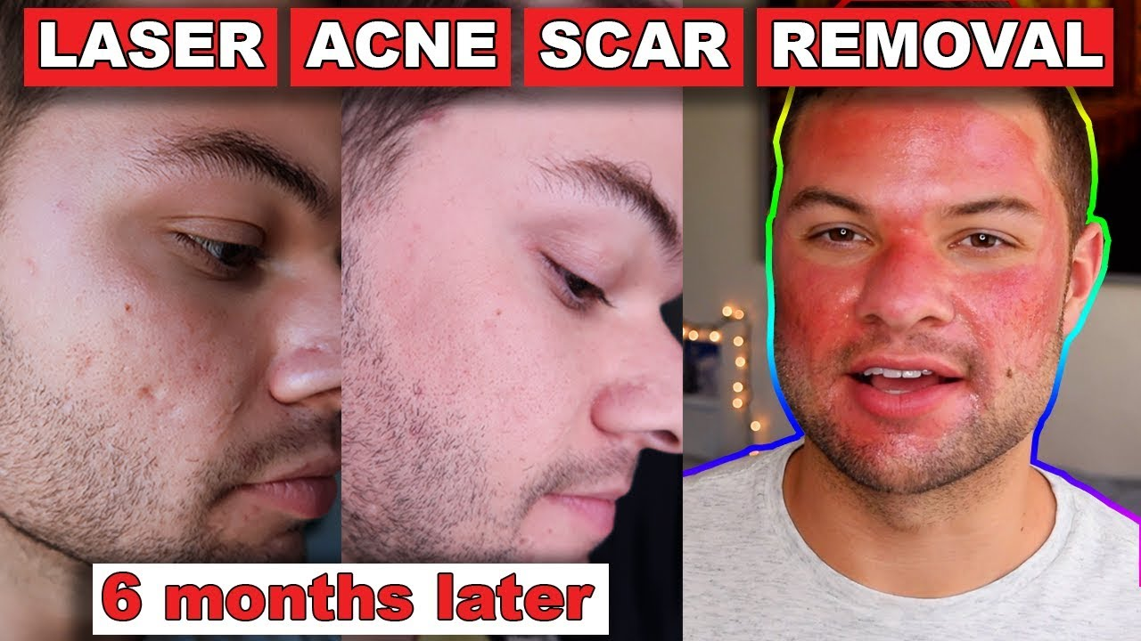 Acne Scar Removal Before And After 6 Months Fractional C02 Laser Skin Resurfacing Youtube