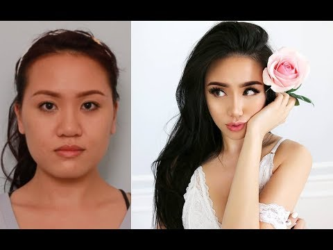 Plastic Surgery Korea Before And After (V Line & Rhinoplasty Surgery & Recovery) Part. 1