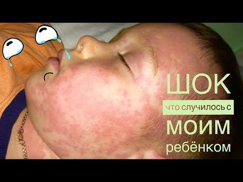 ШОК| Ужасная аллергия| Что делать, когда сыпь у ребенка| аллергическая крапивница