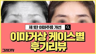 이마거상술 전후 케이스 리뷰 (Feat. 이마주름 제거…