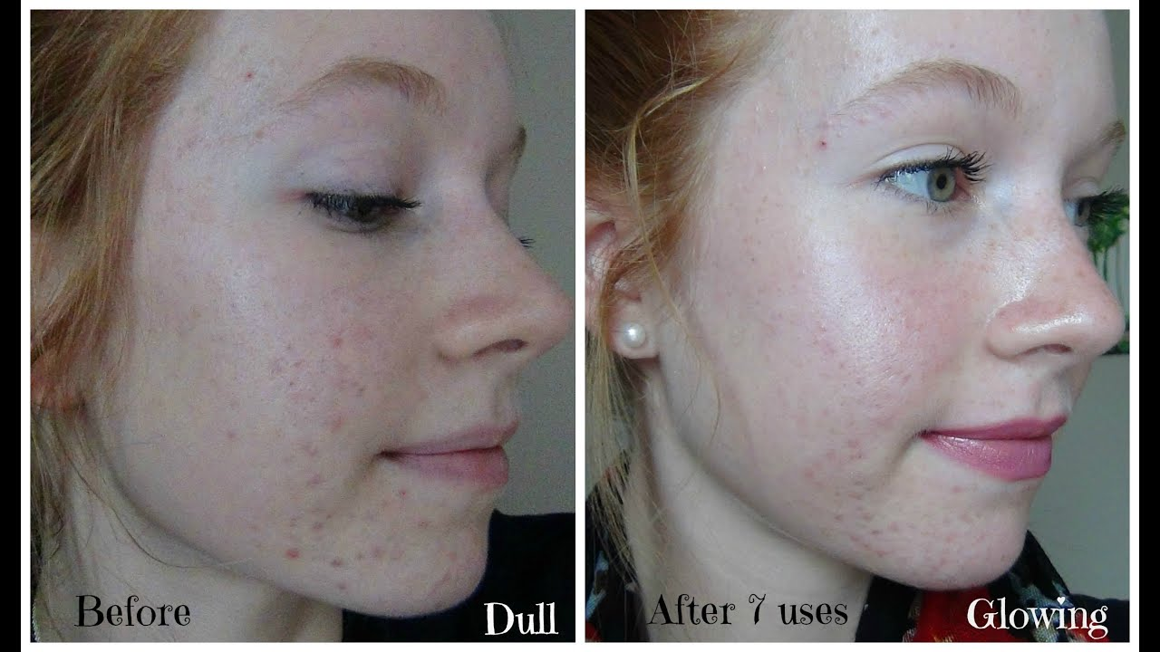 Personal Microderm Review Pmd Demo And Before Amp After