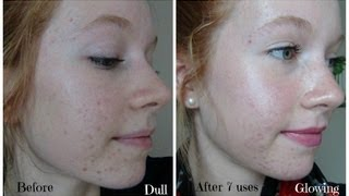 Personal Microderm Review! PMD Demo and Before & After Pictures!