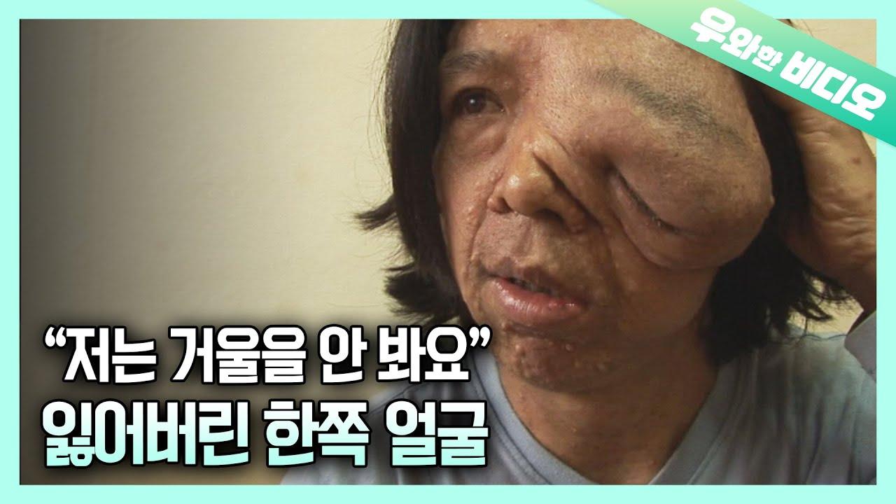 흘러내린 왼쪽 얼굴, 선천성 신경섬유종을 앓고 있는 용식 씨의 사연 ┃A Man Suffering From Neurofibroma, His Melted Left Face
