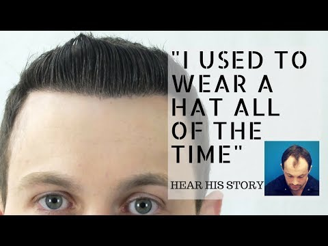 Hair Transplant Before And After | Hasson and Wong Patient Testimonial
