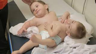 Conjoined Twins Erika and Eva Separated
